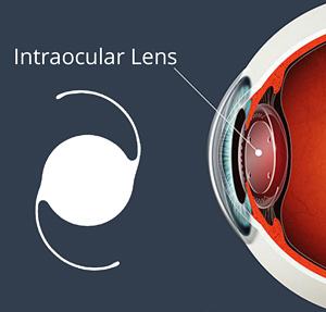 Cataract Intraocular Lens